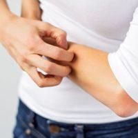 Dry Skin & Eczema