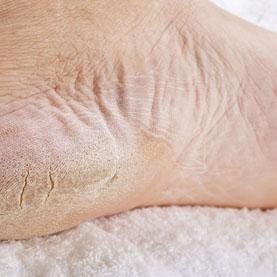 Cracked & Dry Skin